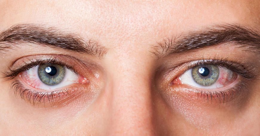123rf.com Zbyt kruche naczynka krwionośne mogą skutkować przekrwieniem oczu