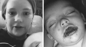 """Chłopiec obudził się z czerwoną wysypką na ustach. """"Uważajcie!"""" - apeluje jego mama"""