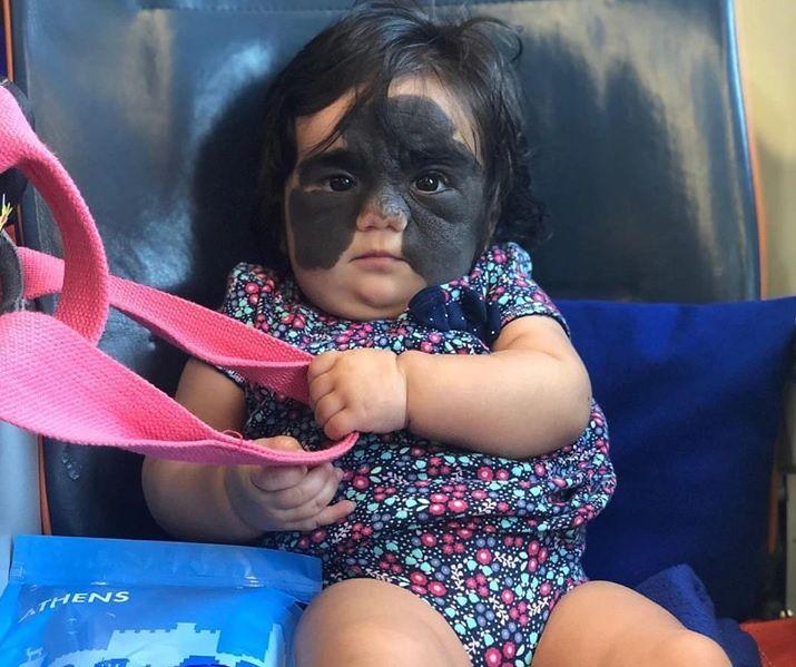 Dziewczynka przed operacją