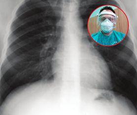 """Koronawirus. """"Po dwóch krokach zatrzymywał się i sapał jak 90-latek"""". Chirurg opowiada o tym, jak COVID-19 niszczy płuca"""