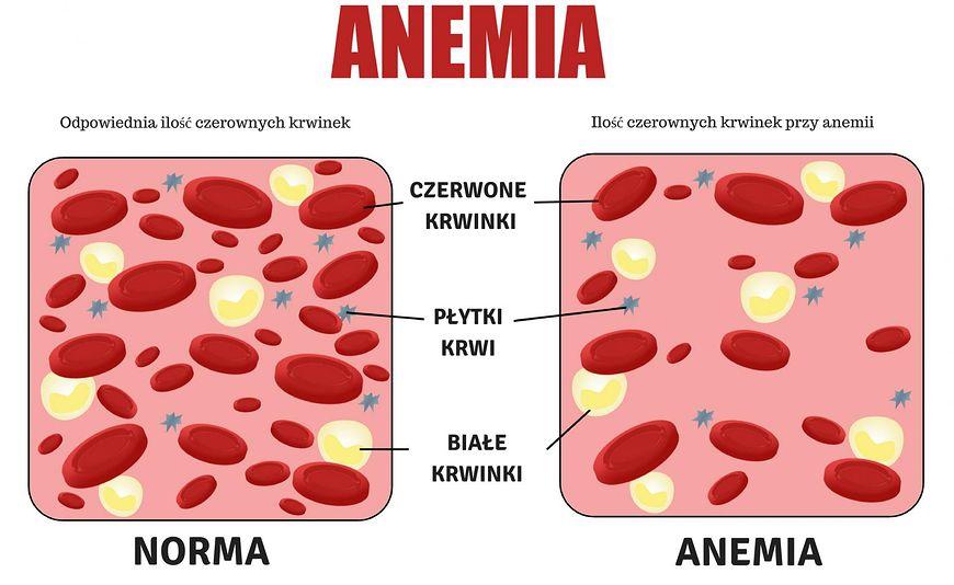 Anemia i nowotwór