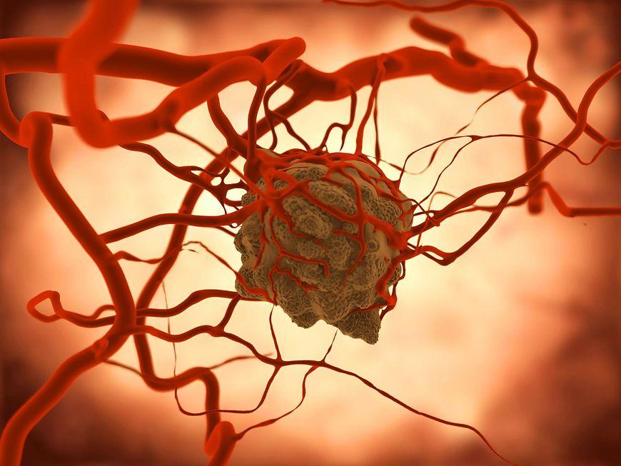 Nadmierna potliwość może oznaczać nowotwór