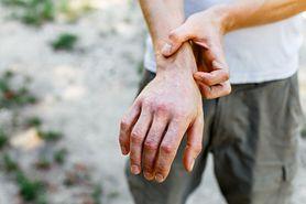 Koronawirus. Wysuszona skóra dłoni objawem COVID-19? (WIDEO)