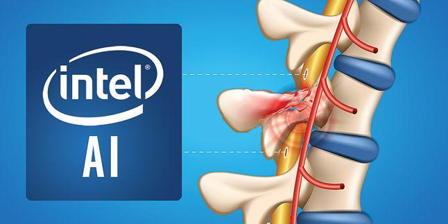 Intel stawia na sztuczną inteligencję, którą chce wykorzystać w medycynie, fot. Intel.