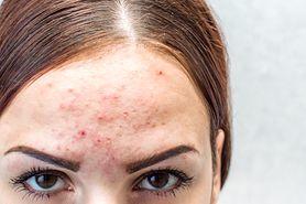 Trądzik pospolity (acne vulgaris) - charakterystyka, klasyfikacja, przyczyny, objawy, leczenie, rokowanie