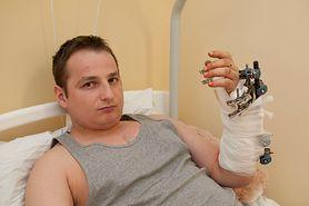 W dwóch szpitalach proponowali amputację. W Łęcznej przyszyto dłoń