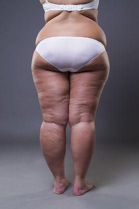 Złogi tłuszczu pod skórą. Jak się ich pozbyć?