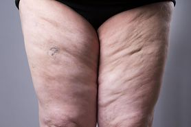 Za grube nogi może odpowiadać lipodemia