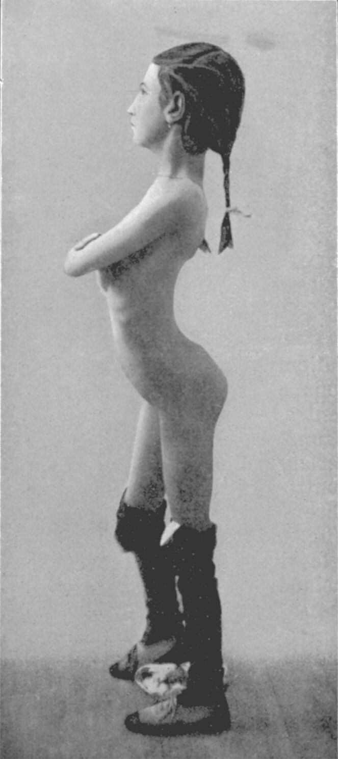 Dziewczynka z lordozą
