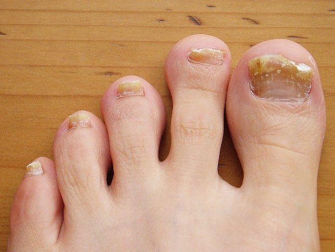 Chory na grzybicę paznokcia