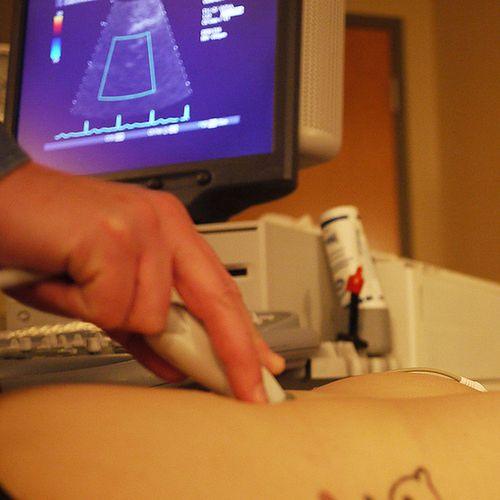 Obraz USG wykonywane w ciąży