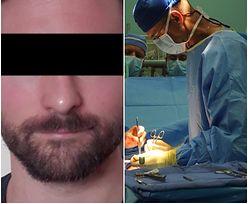 Zrobił operację plastyczną, ale i tak złapała go policja