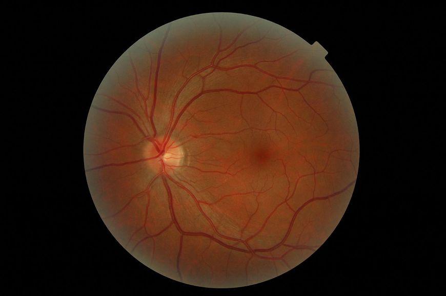 Choroby oczu - obraz gałki ocznej