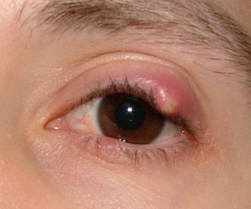 Choroby oczu - gradówka na oku