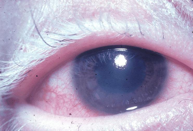 Choroby oczu - objawy zapalenia błony naczyniowej