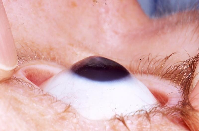 Choroby oczu - stożek rogówki