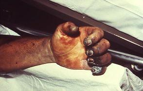 Pacjent ze zmianami przy dżumie