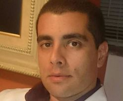 Chirurg plastyczny celebrytów ścigany przez policję. Jego pacjentka zmarła po zabiegu