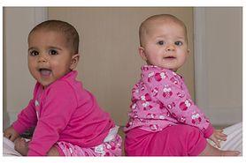 Na świat przyszły bliźniaczki o różnym kolorze skóry