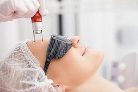 Laser frakcyjny – wskazania, przeciwwskazania, opis zabiegu, postępowanie po zabiegu