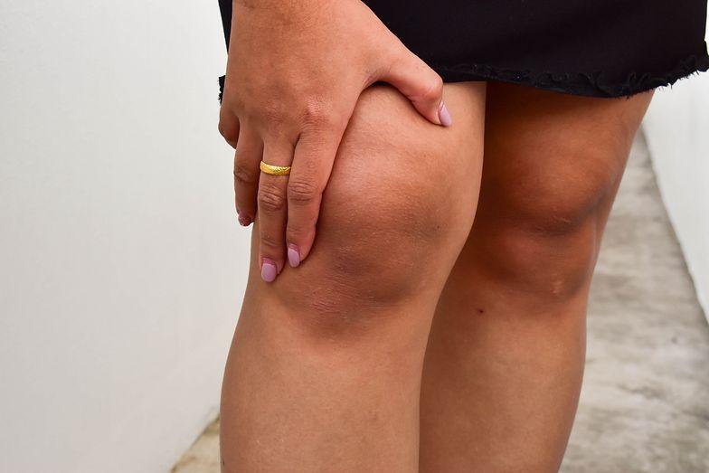 Opuchlizna kolan może wskazywać na zakrzepicę