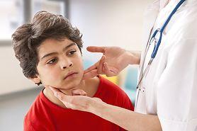 Mononukleoza u dzieci - objawy, leczenie, rekonwalescencja