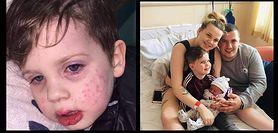 """Wirus opryszczki groźny dla dzieci. To """"pocałunek śmierci"""""""