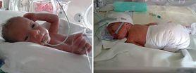 Gdy się urodził, ważył 780 g. Lekarze dawali Czarkowi 1 proc. szans na przeżycie