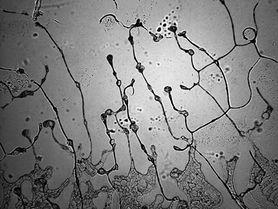 """Projekt """"topografia łez"""" - czym jest i co mówi o naszych łzach"""