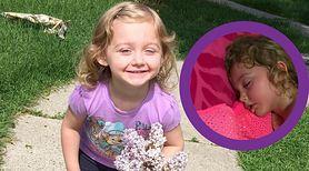 Dziewczynka przegrzała się nie wychodząc z domu! Matka publikuje zdjęcie i ostrzega innych rodziców
