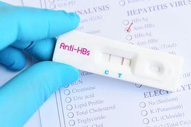 Antygen hbs – badanie, wirusowe zapalenie wątroby typu B