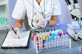 Badanie chemiczne moczu