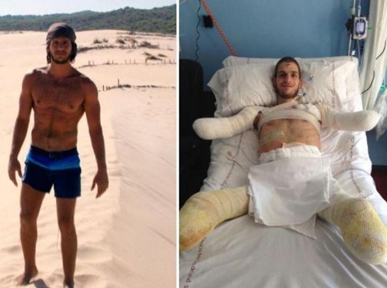 Lekarze pomylili zapalenie opon mózgowych z grypą. 24-latek stracił dłonie i stopy