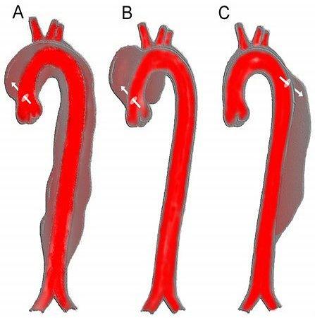 Rodzaje tętniaków