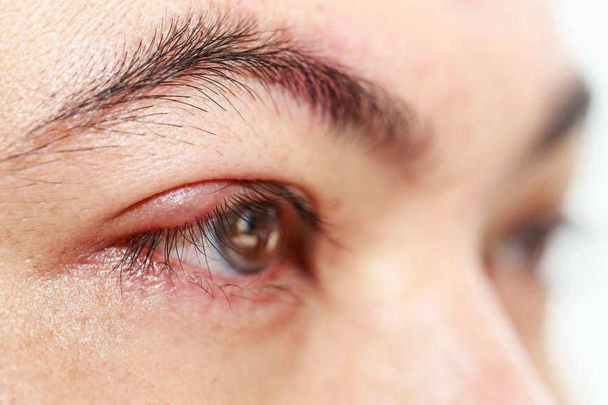 Lekarstwo na chore oczy