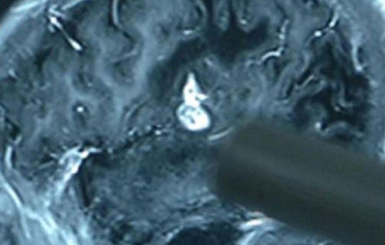 Nagły paraliż 23-latka. Przerażające, co wyciągnęli z jego mózgu