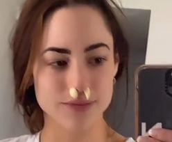 Nie wkładaj ząbków czosnku do nosa. Lekarka ostrzega przed tiktokowym trendem