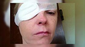 Ugryzienie kleszcza wywołało paraliż. Nieleczona borelioza zniszczyła jej życie (WIDEO)