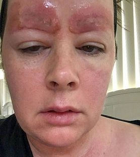 Trwały makijaż wypalił kobiecie brwi. Teraz ostrzega innych
