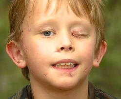 Dziecko zaatakowane przez pumę. Chłopiec cudem wyrwał głowę ze szczęk kota