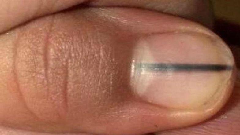 Objaw czerniaka na paznokciu