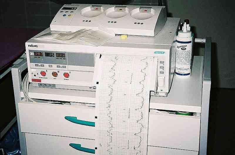 Sprzęt do kardiotokografii