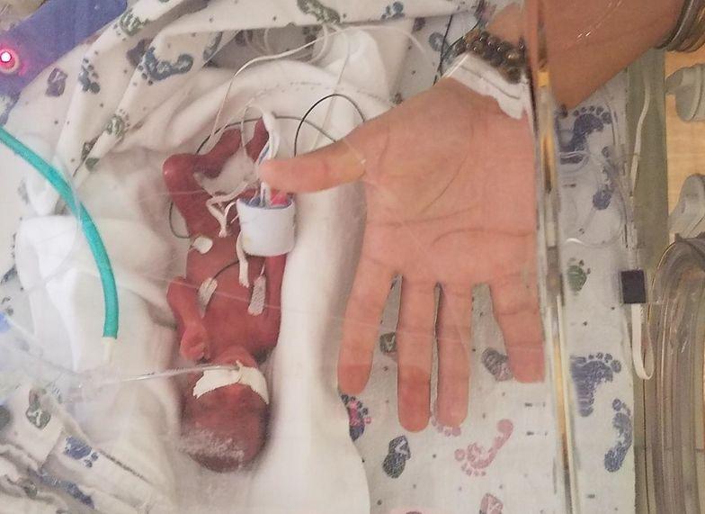 Dziecko przyszło na świat 4 miesiące przed terminem. Waży 368 gramów