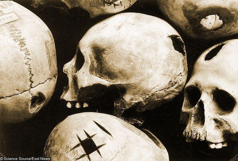 Inkowie mieli lepszych chirurgów niż Amerykanie 300 lat później