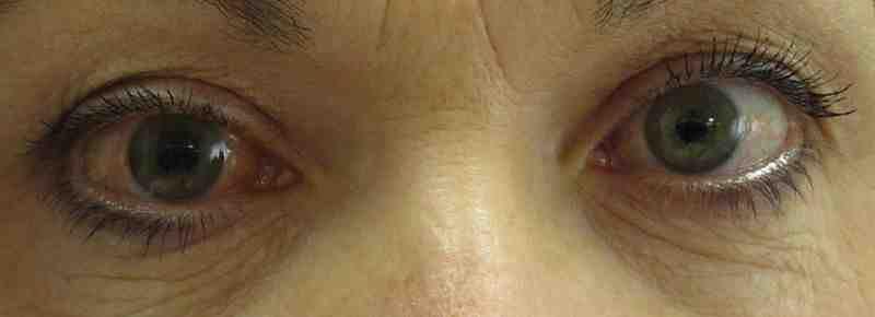 Zdjęcie oczu kobiety chorej na jaskrę