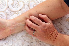 Niedobór witaminy B12 - objawy, przyczyny, rozpoznanie, leczenie