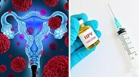 Skuteczny lek na raka szyjki macicy. Jest dostępny w Polsce