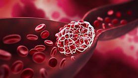 Niski poziom hemoglobiny – przyczyny, leczenie