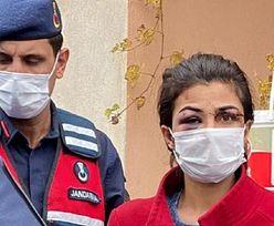 """Oburzenie w Turcji. Mąż chciał """"nakarmić nią psy"""". Grozi jej dożywocie"""