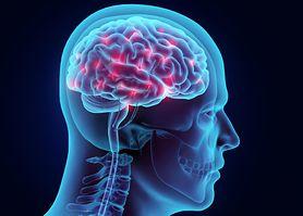 Wpływ stresu na mózg. Naukowcy ostrzegają